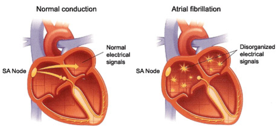 What is Atrial Fibrillation? What is AFib? Atrial Fibrillation (AFib) is the most common type of heart arrhythmia.