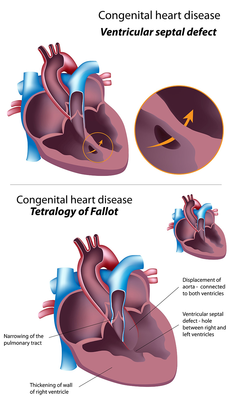 congenital heart disease in children - HD 800×1372