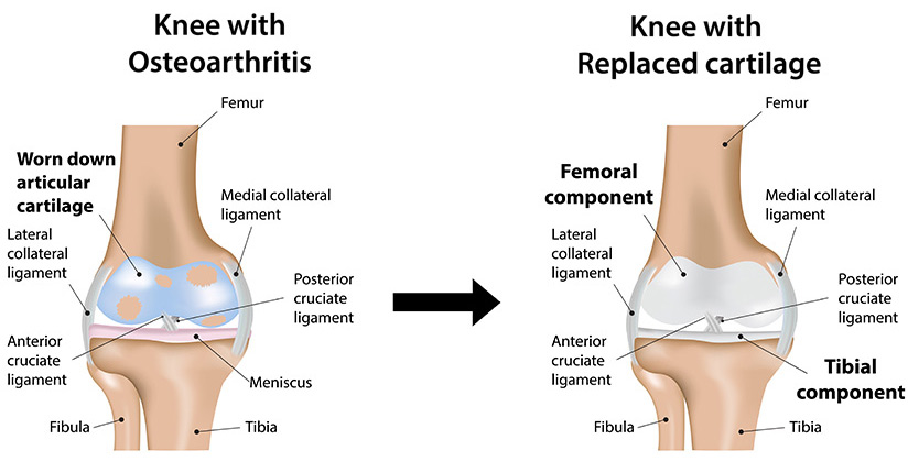 Types of Knee Surgery and Knee Replacement Graphic | types knee surgery